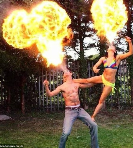 Pole dancing fire-breather suffers horrific facial burns